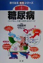 徹底図解 糖尿病 これで安心、治療と日常生活のすべて(目でみる医書シリーズ)(単行本)