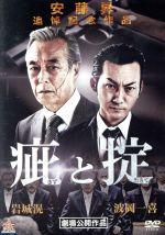疵と掟(通常)(DVD)